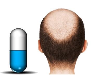 Plazmoterapiya a una perdita di capelli