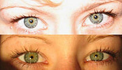 Colore degli occhi approfondimenti - Colore degli occhi diversi ...