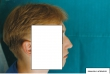 profilo prima di intervento